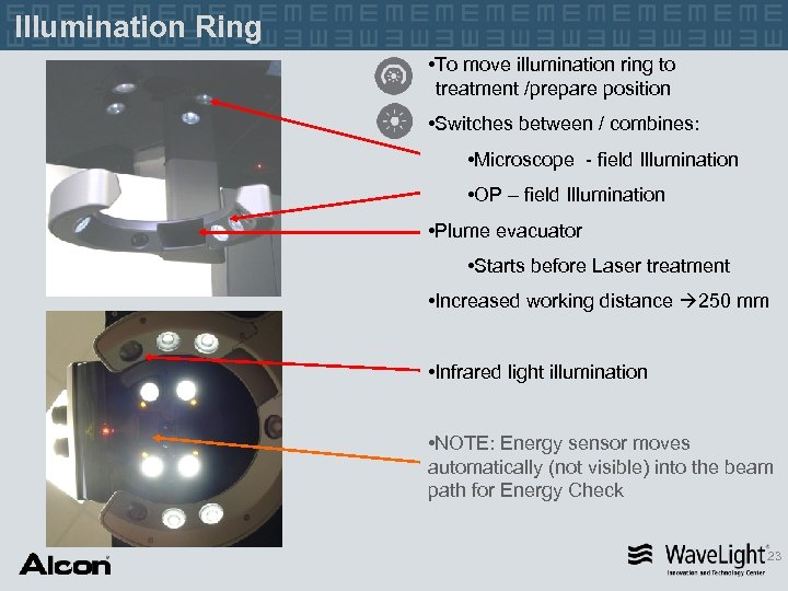 Illumination Ring • To move illumination ring to treatment /prepare position • Switches between