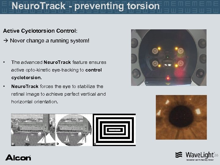 Neuro. Track - preventing torsion Active Cyclotorsion Control: Never change a running system! •