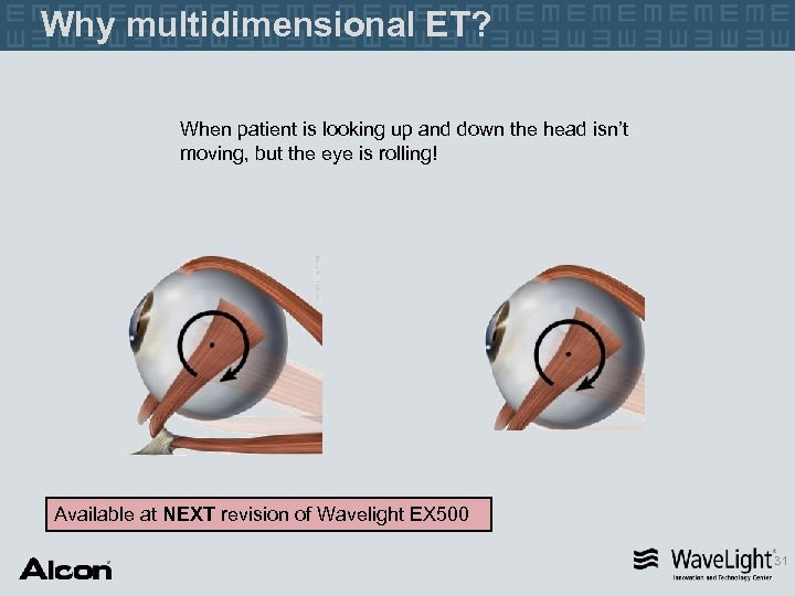 Why multidimensional ET? When patient is looking up and down the head isn't moving,