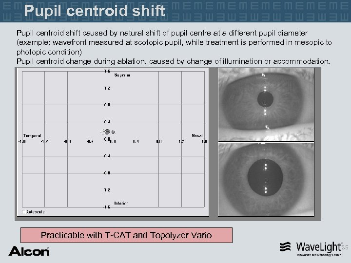 Pupil centroid shift caused by natural shift of pupil centre at a different pupil