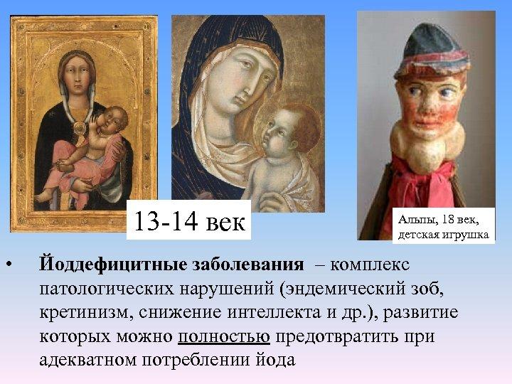 13 -14 век • Альпы, 18 век, детская игрушка Йоддефицитные заболевания – комплекс патологических
