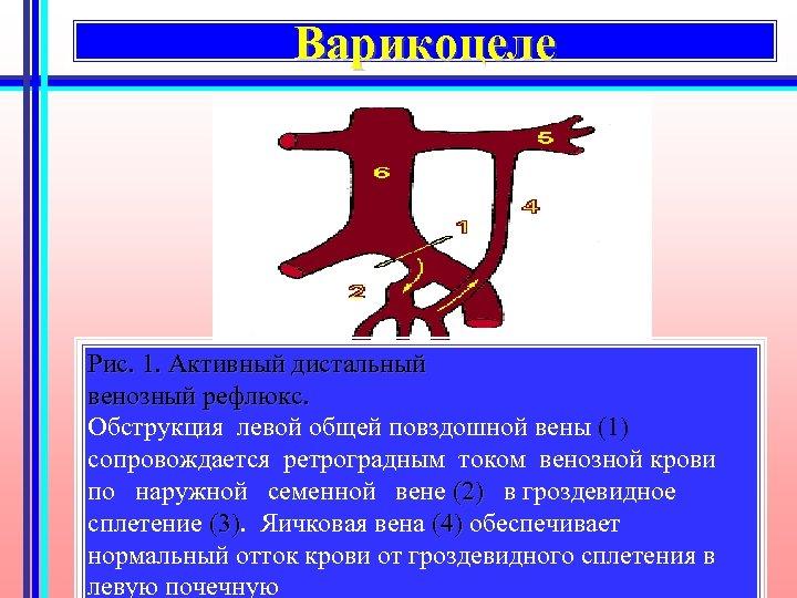 Варикоцеле Рис. 1. Активный дистальный венозный рефлюкс. Обструкция левой общей повздошной вены (1) сопровождается