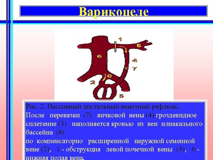Варикоцеле Рис. 2. Пассивный дистальный венозный рефлюкс. После перевязки (7) яичковой вены (4) гроздевидное