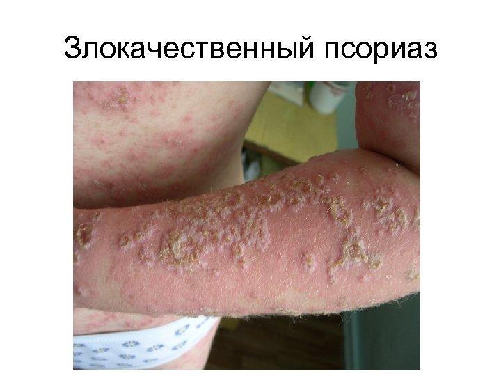 Злокачественный псориаз