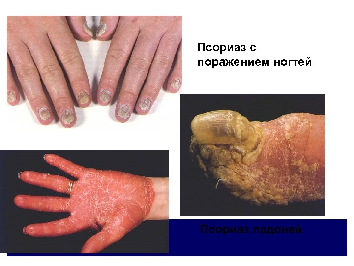 Псориаз с поражением ногтей Псориаз ладоней