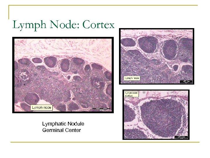 Lymph Node: Cortex Lymphatic Nodule Germinal Center