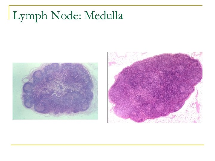 Lymph Node: Medulla