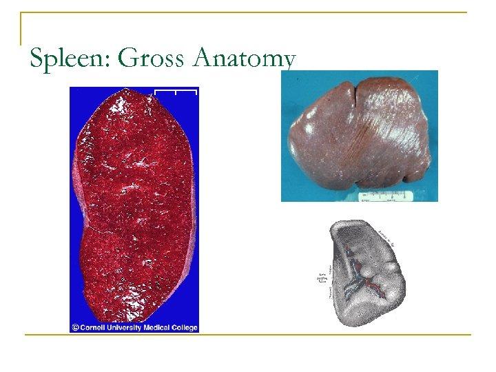 Spleen: Gross Anatomy