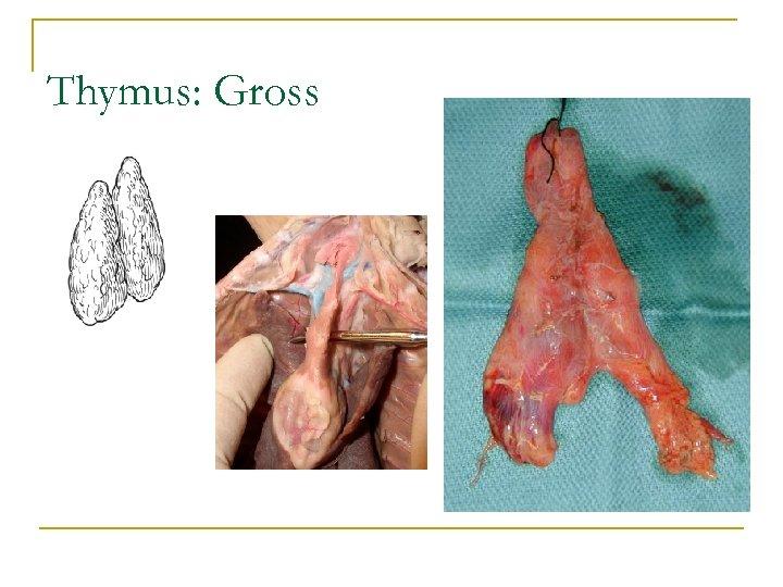 Thymus: Gross