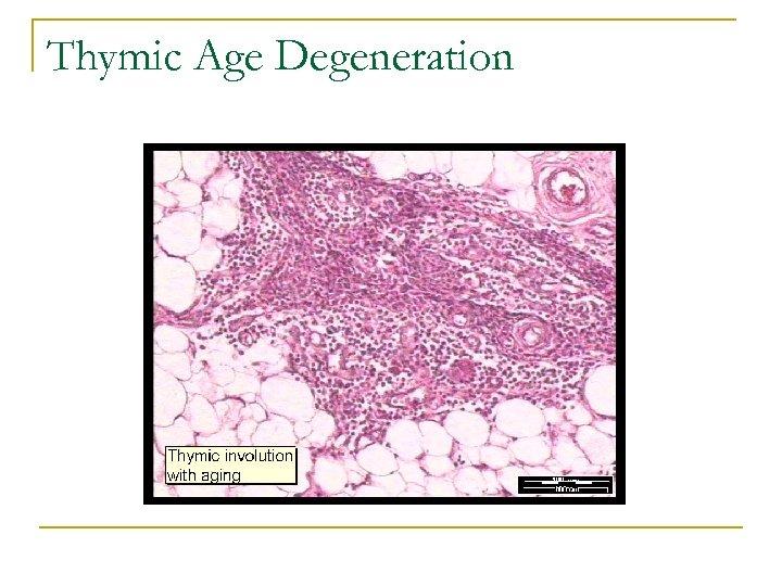 Thymic Age Degeneration