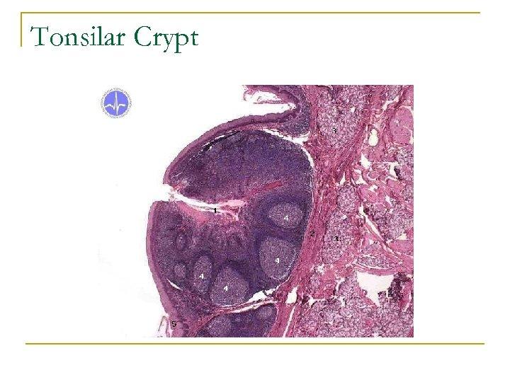 Tonsilar Crypt
