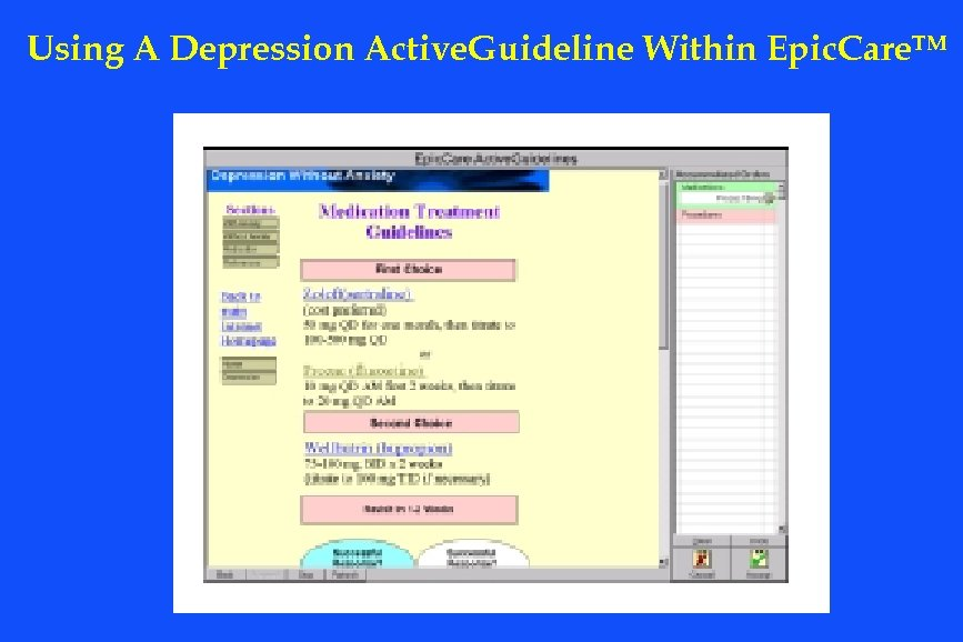 Using A Depression Active. Guideline Within Epic. Care. TM