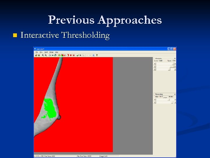 Previous Approaches n Interactive Thresholding
