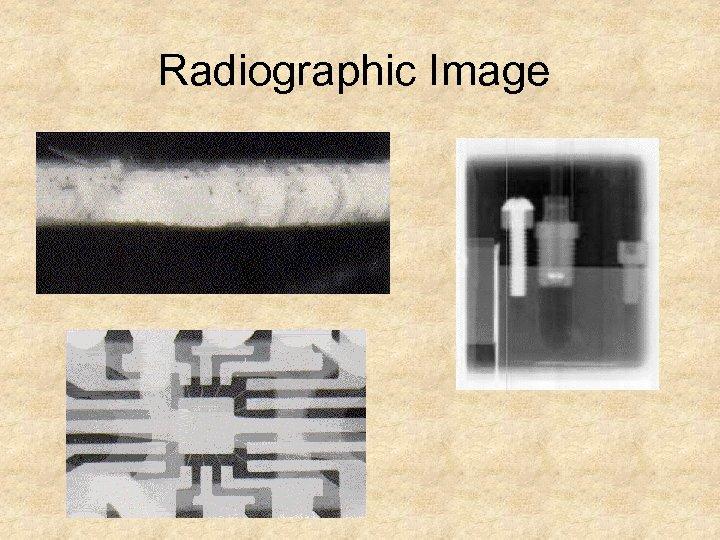 Radiographic Image