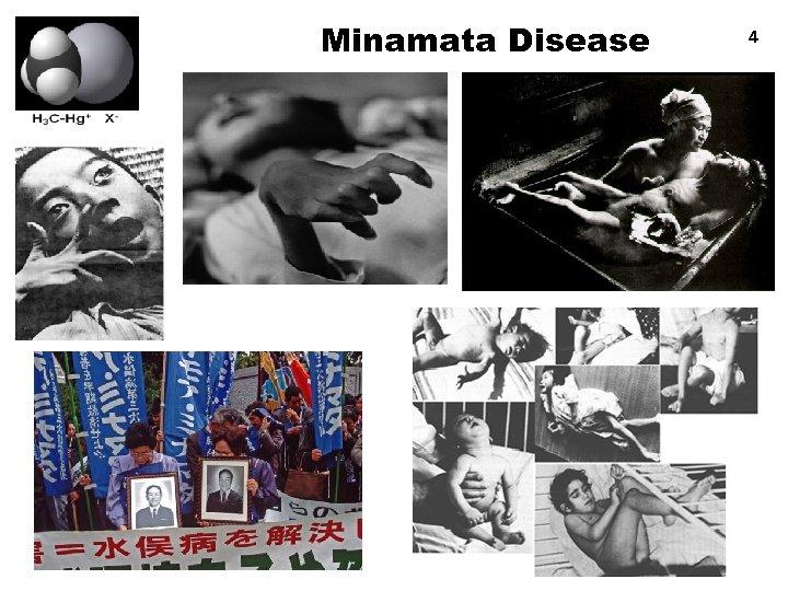 Minamata Disease 4