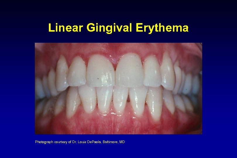 Linear Gingival Erythema Photograph courtesy of Dr. Louis De. Paola, Baltimore, MD