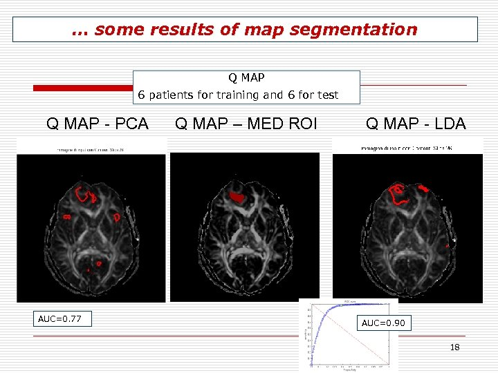 … some results of map segmentation Q MAP 6 patients for training and 6