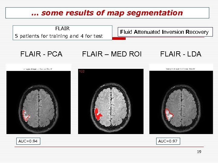 … some results of map segmentation FLAIR 5 patients for training and 4 for