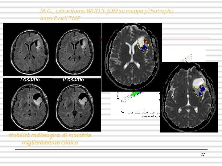 M. G. , astrocitoma WHO II: f. DM su mappa p (isotropia) dopo 6