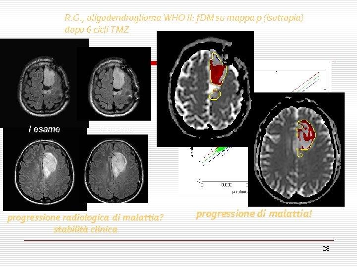 R. G. , oligodendroglioma WHO II: f. DM su mappa p (isotropia) dopo 6