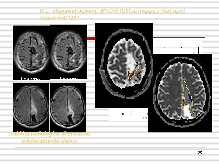 B. L. , oligodendroglioma WHO II: f. DM su mappa p (isotropia) dopo 6