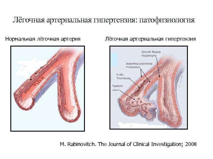 Гипертония 3 Степени: Симптомы + Причины + Диагностика ...