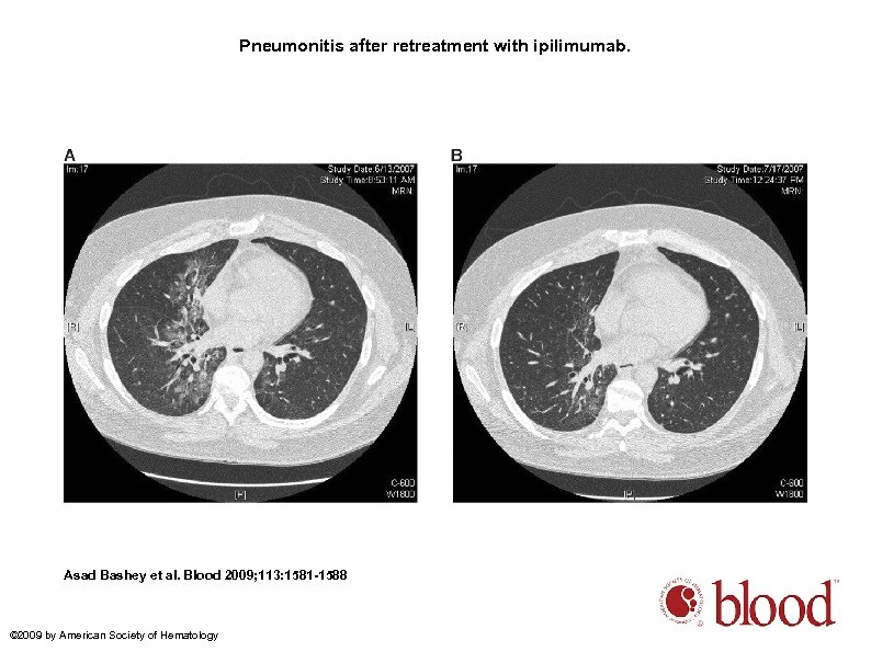 Pneumonitis after retreatment with ipilimumab. Asad Bashey et al. Blood 2009; 113: 1581 -1588
