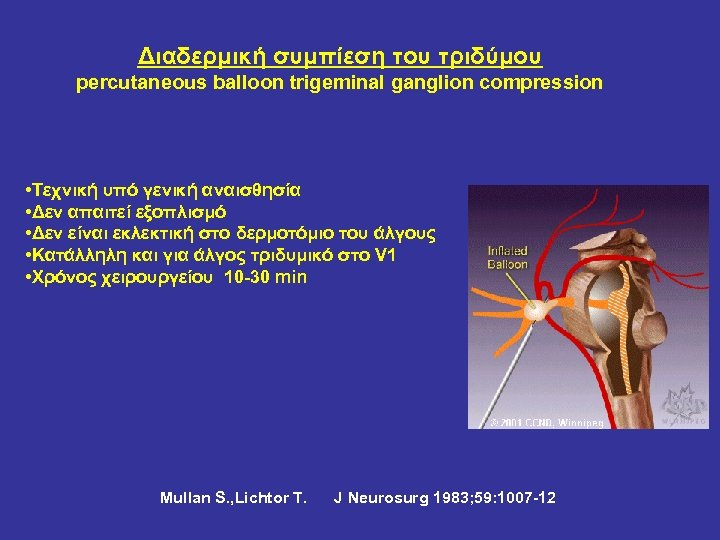 Διαδερμική συμπίεση του τριδύμου percutaneous balloon trigeminal ganglion compression • Τεχνική υπό γενική αναισθησία