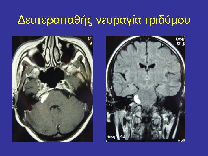 Δευτεροπαθής νευραγία τριδύμου