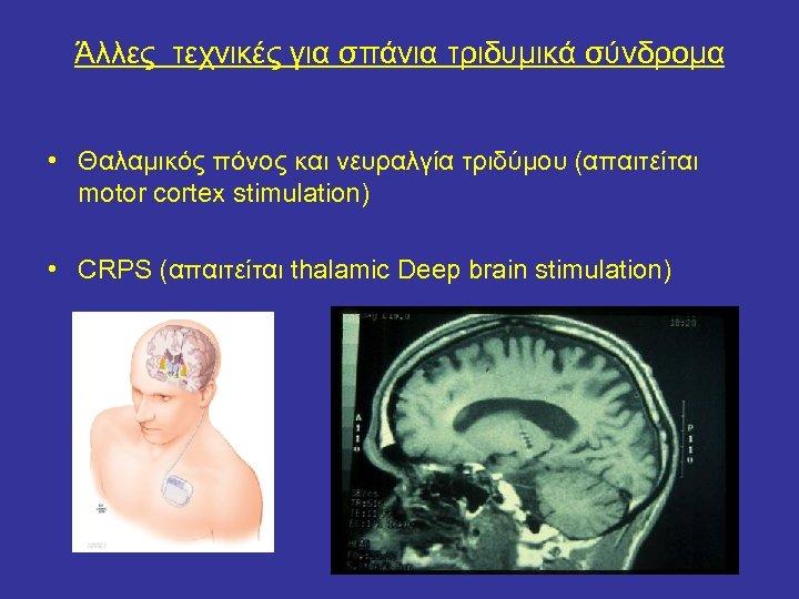 Άλλες τεχνικές για σπάνια τριδυμικά σύνδρομα • Θαλαμικός πόνος και νευραλγία τριδύμου (απαιτείται motor