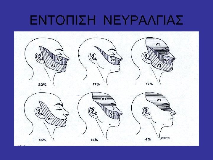 ΕΝΤΟΠΙΣΗ ΝΕΥΡΑΛΓΙΑΣ