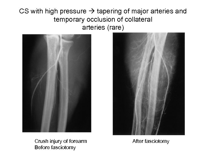 CS with high pressure tapering of major arteries and temporary occlusion of collateral arteries