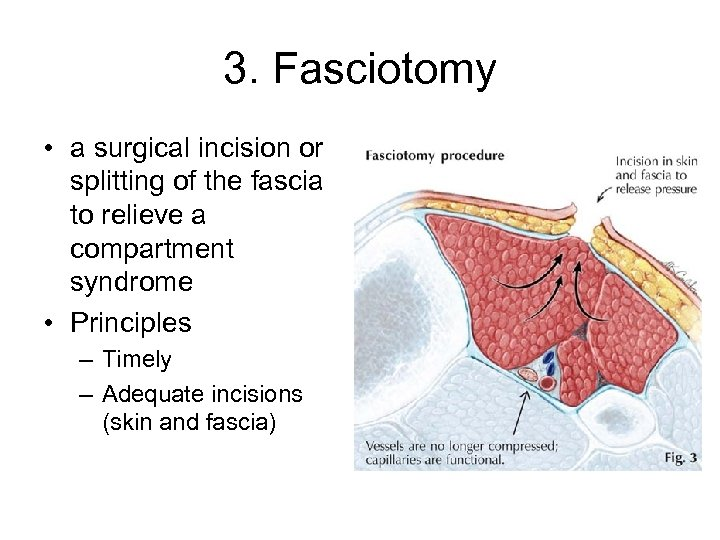 3. Fasciotomy • a surgical incision or splitting of the fascia to relieve a