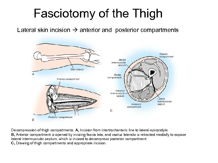 Fasciotomy of the Thigh Lateral skin incision anterior and posterior compartments Decompression of thigh