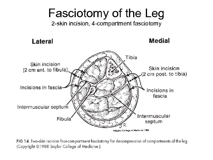 Fasciotomy of the Leg 2 -skin incision, 4 -compartment fasciotomy