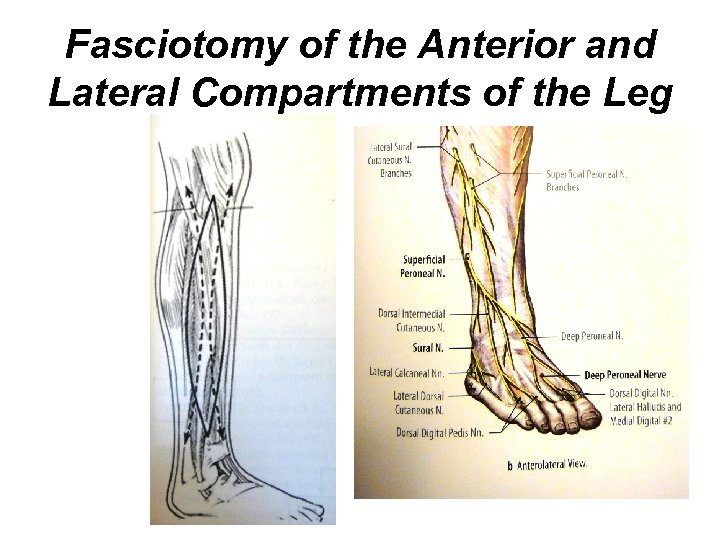 Fasciotomy of the Anterior and Lateral Compartments of the Leg