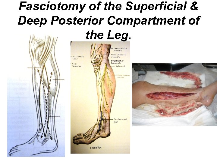 Fasciotomy of the Superficial & Deep Posterior Compartment of the Leg.