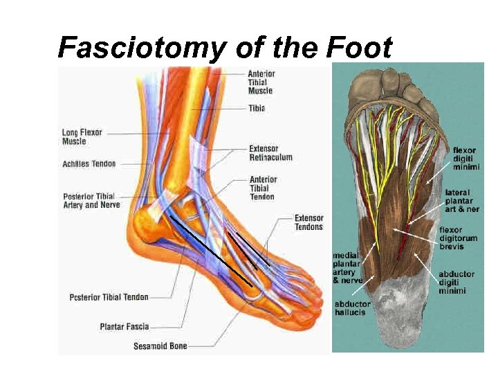 Fasciotomy of the Foot