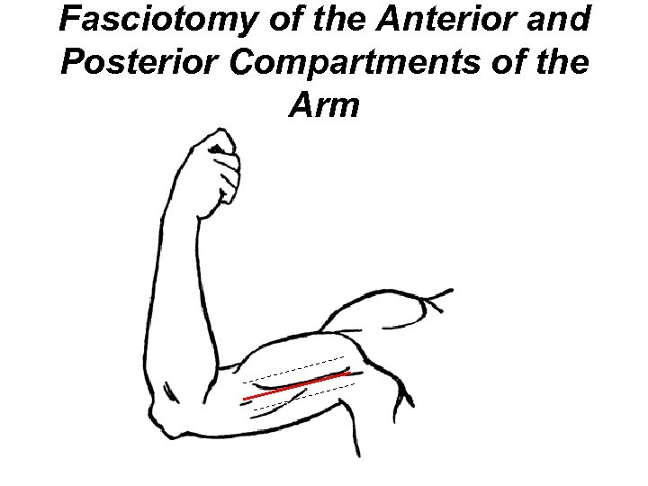 Fasciotomy of the Anterior and Posterior Compartments of the Arm