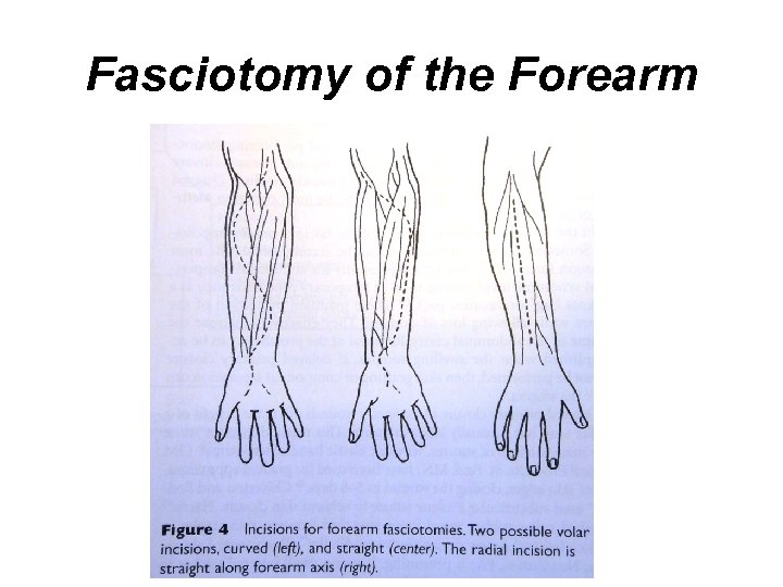 Fasciotomy of the Forearm
