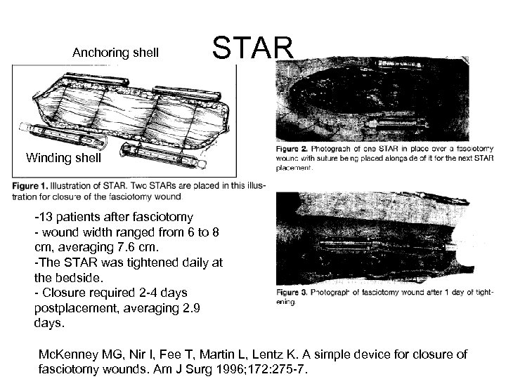 Anchoring shell STAR Winding shell -13 patients after fasciotomy - wound width ranged from