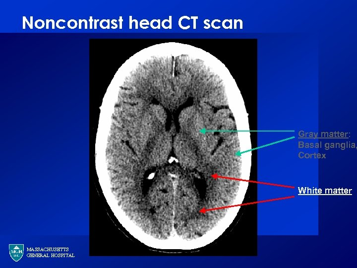 Noncontrast head CT scan Gray matter: Basal ganglia, Cortex White matter MASSACHUSETTS GENERAL HOSPITAL