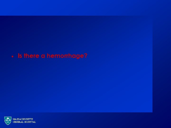 · Is there a hemorrhage? MASSACHUSETTS GENERAL HOSPITAL