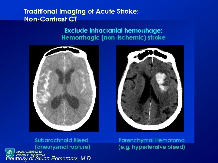 Traditional Imaging of Acute Stroke: Non-Contrast CT Exclude intracranial hemorrhage: Hemorrhagic (non-ischemic) stroke Subarachnoid