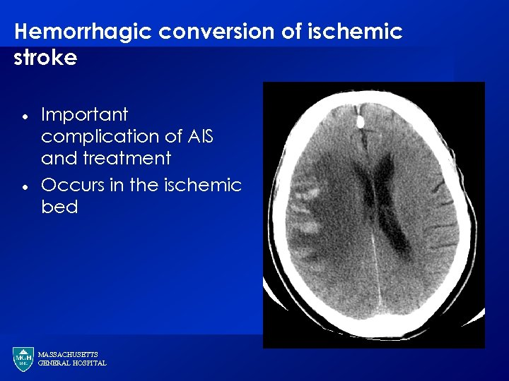 Hemorrhagic conversion of ischemic stroke · · Important complication of AIS and treatment Occurs
