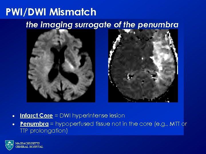 PWI/DWI Mismatch the imaging surrogate of the penumbra · · Infarct Core = DWI