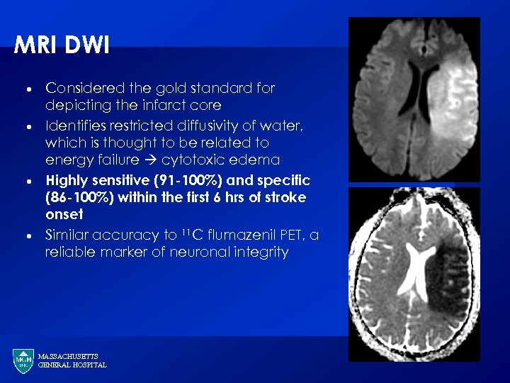 MRI DWI · · Considered the gold standard for depicting the infarct core Identifies