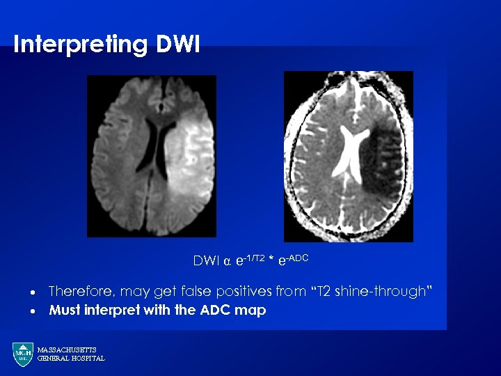 Interpreting DWI ⍺ e-1/T 2 * e-ADC · · Therefore, may get false positives