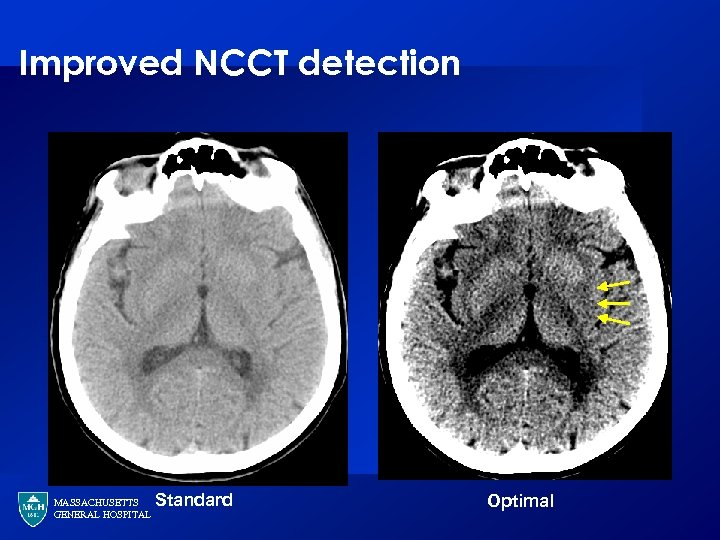 Improved NCCT detection MASSACHUSETTS GENERAL HOSPITAL Standard Optimal