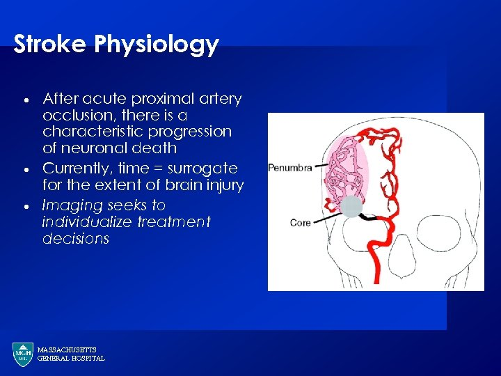 Stroke Physiology · · · After acute proximal artery occlusion, there is a characteristic